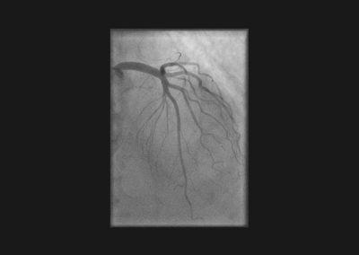 Herzkatheterbild mit Normalbefund